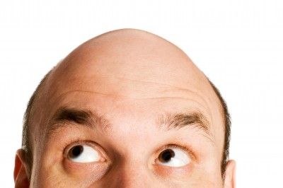 Men Worry More About Hair Loss Than Money