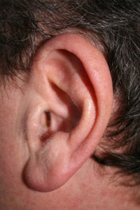 New Cosmetic Surgery Procedure to Reverse Stretched Earlobes